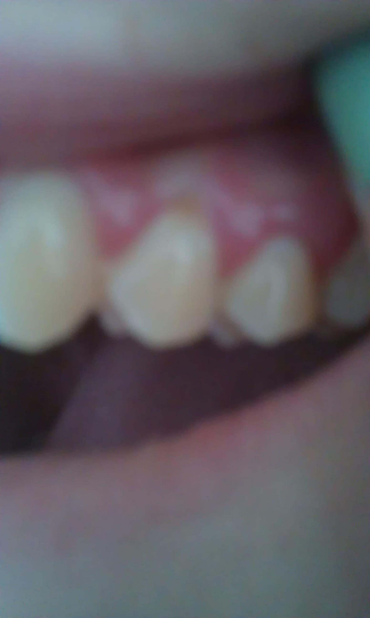 Zwarte Vlekken Terugtrekkend Tandvlees Etc Help Mij Tandarts Nl