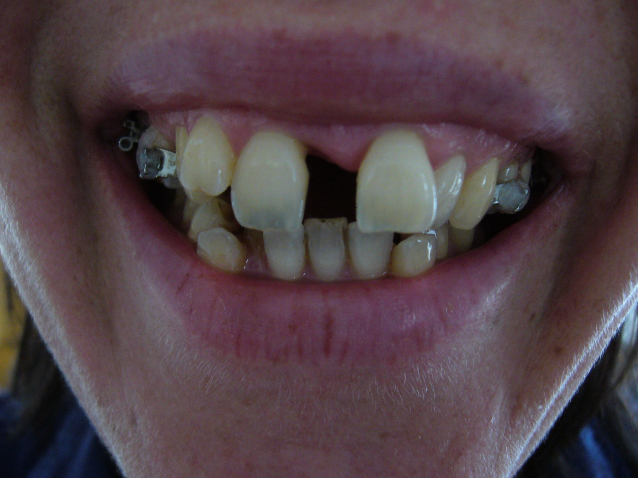 Pijn tussen tanden