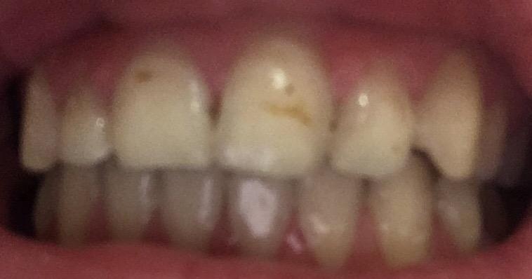 Bruine Streep En Zwarte Puntjes Voor Tanden Tandarts Nl