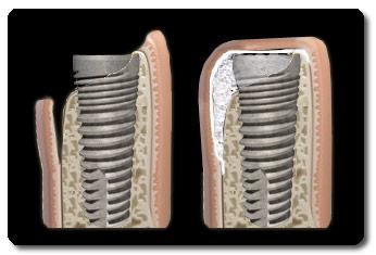 implantaat_met_botopbouw