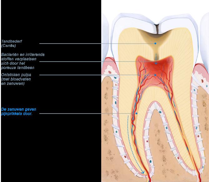 tandpijn na vullen tand