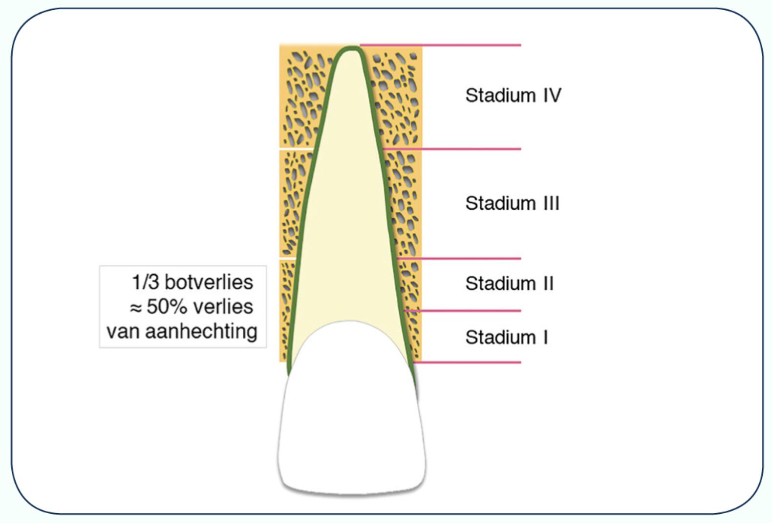 Statia van tandvleesontsteking en bot ontsteking - Parodontitis