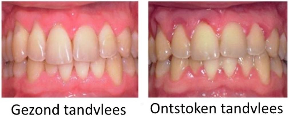 tandvlees gezond en ontstoken